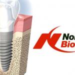 implanturi-premium-pret-si-calitate-590x332